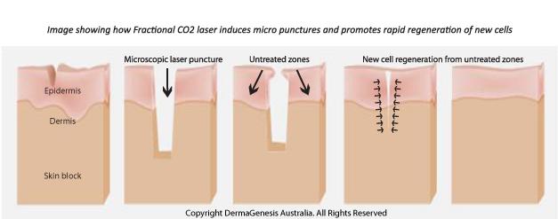 CO2_laser