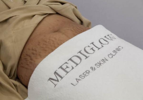 Mediglow-34-of-208-600x420