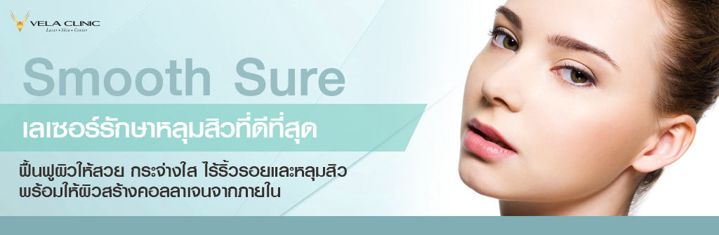 Smooth Sure 3-1024x335