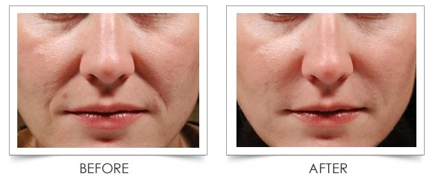 juvederm-skin-treatment-before-after-hood-river-oregon-the-dalles-medspa-treatments-3